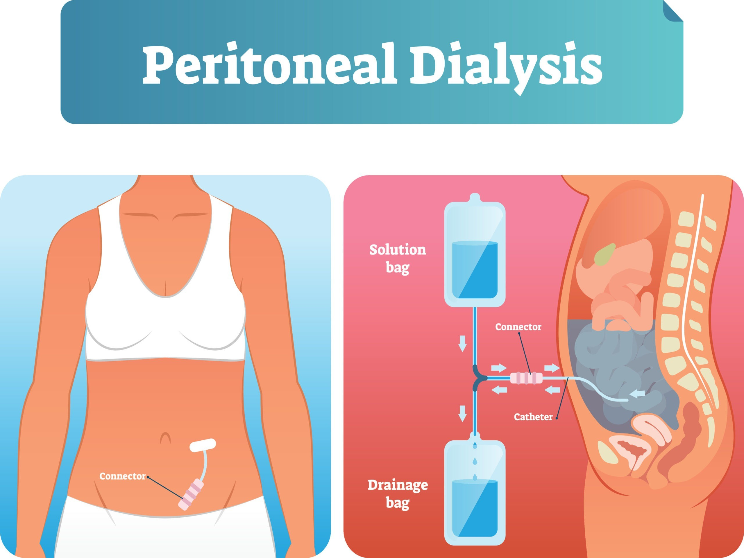 Peritoneal dialysis vector illustration. Labeled method to exchange fluids.