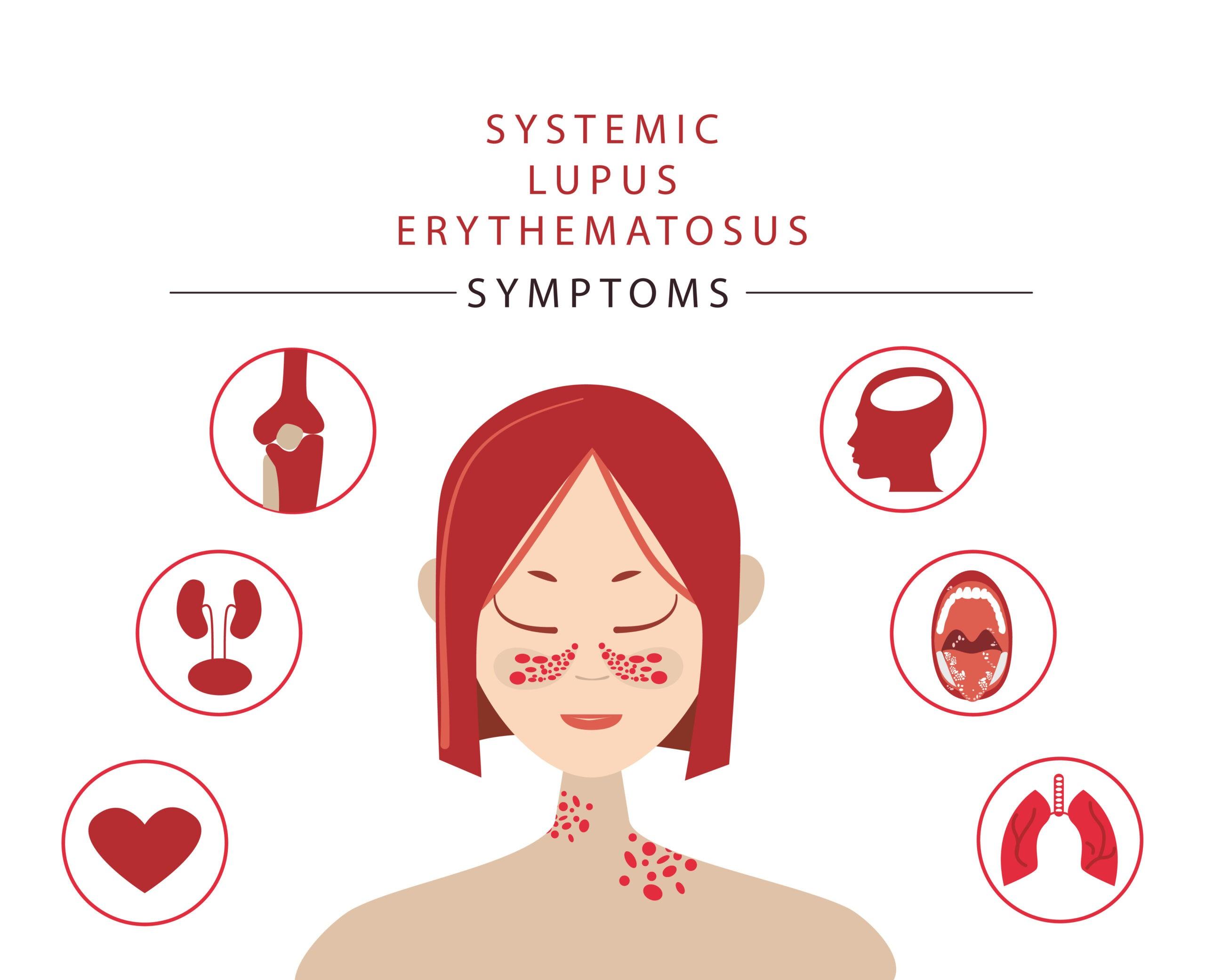 Extrarenal Symptoms of Lupus Nephritis
